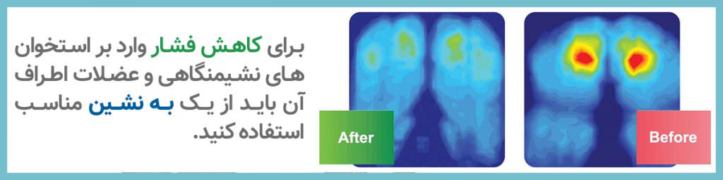 کاهش فشار بر استخوان - به نشین ارگونومیک ارتوپدی باراد